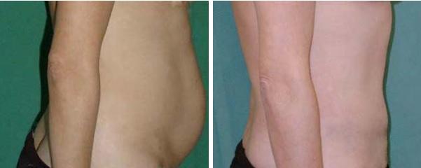 האם ניתן לעשות שאיבת שומן אחרי הגדלת חזה?