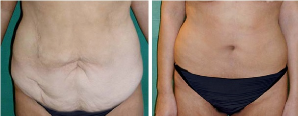 כיצד לשמור על תוצאות הניתוח של מתיחת בטן לאורך זמן?