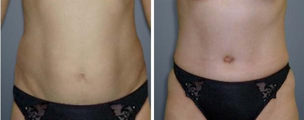 האם ניתן לעשות אימוני בטן לאחר ניתוח מתיחת הבטן?