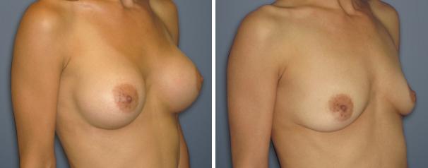 צלקות לאחר ניתוח הגדלת חזה