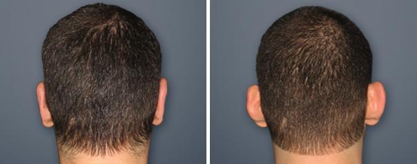 10 שאלות תשובות בנושא ניתוח הצמדת אוזניים