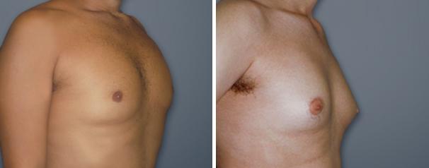 תמונות לפני/אחרי הקטנת חזה גברים